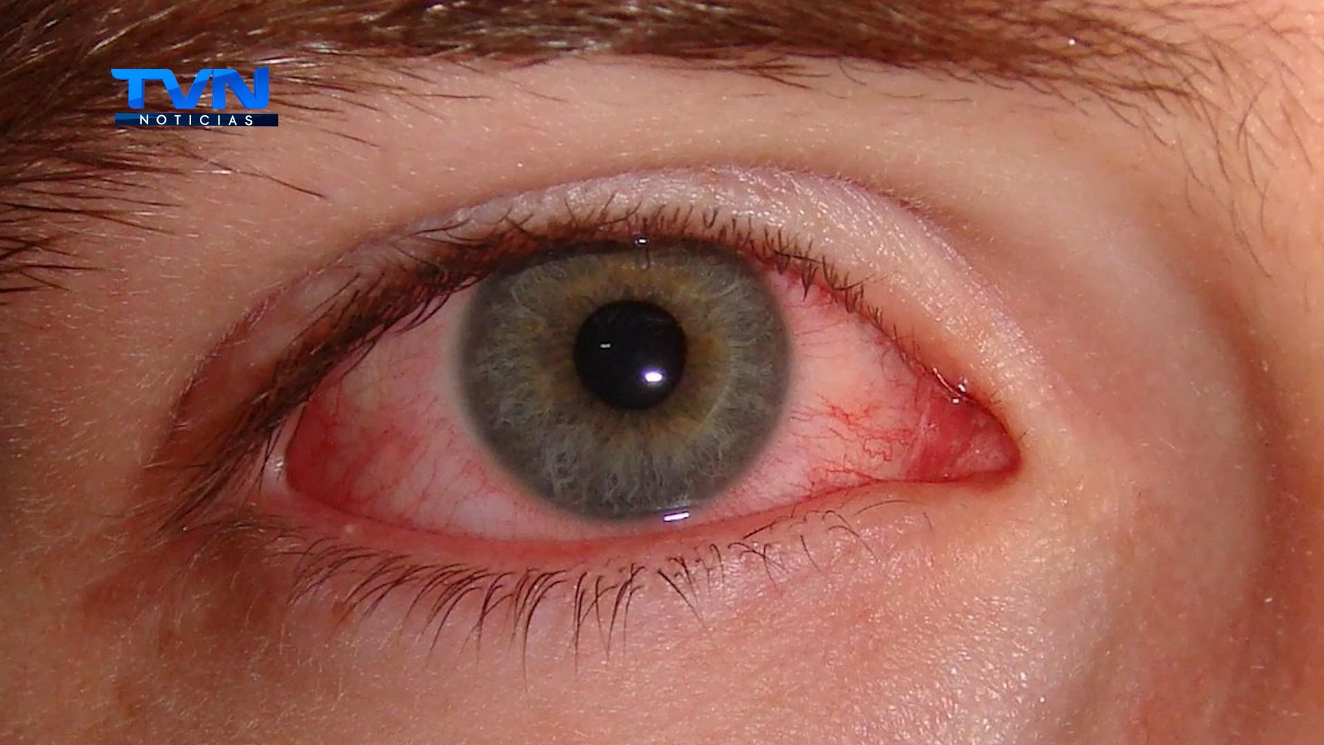 La conjuntivitis es una enfermedad que se contagia con mayor facilidad