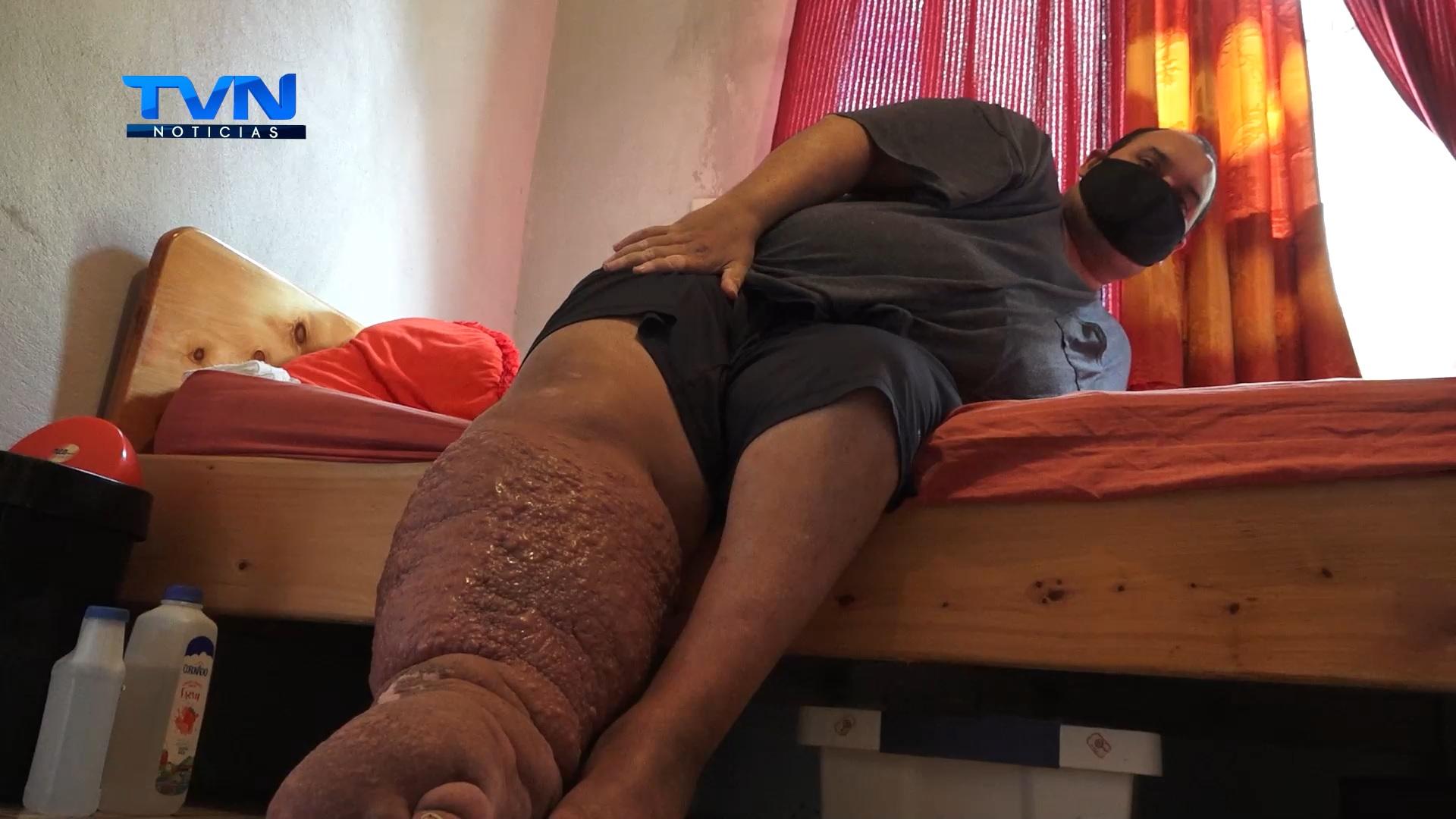 Un vecino de Aguas Zarcas requiere de su ayuda para tener una mejor calidad de vida